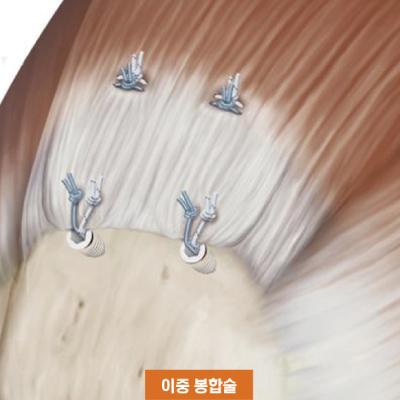 이중봉합술.jpg