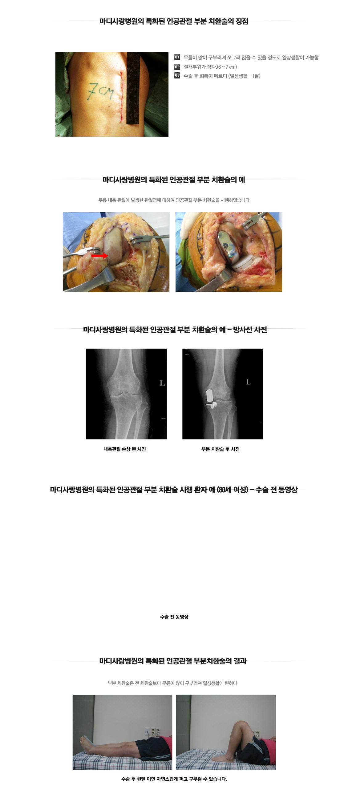 Partial Joint Arthroplasty