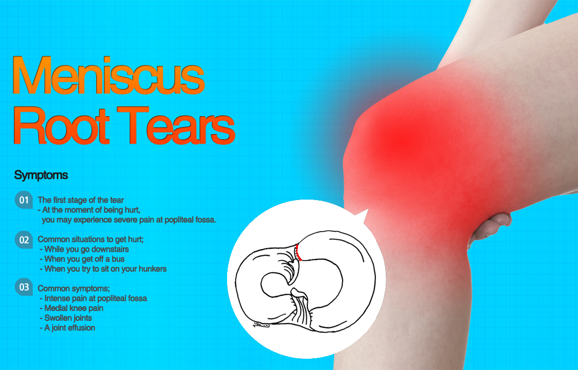 Meniscus Root Tears