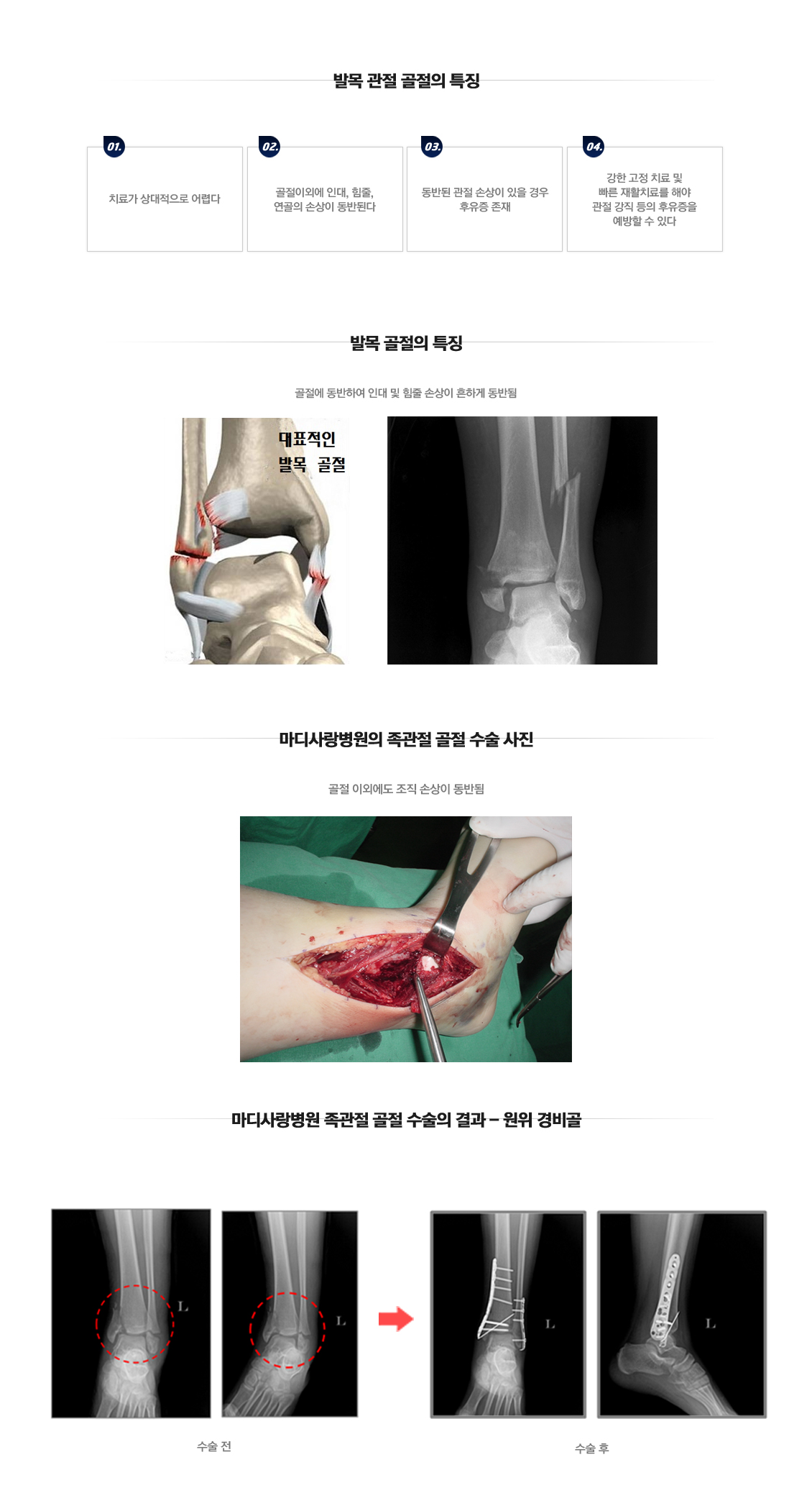 Lateral Ankle Instability Surgery